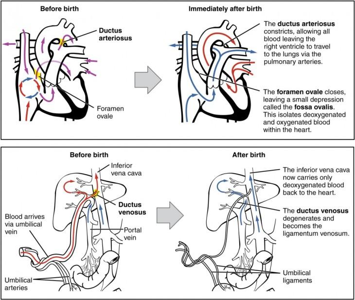 2921_neonatal_circulatory_system